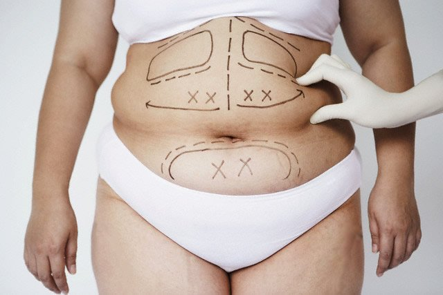 Липосакция: радикальный способ избавиться от лишнего веса