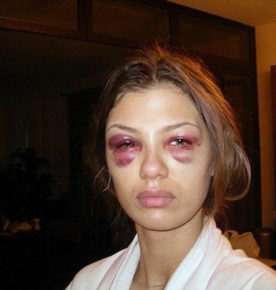 Вику Боню зверски избил жених или операция?