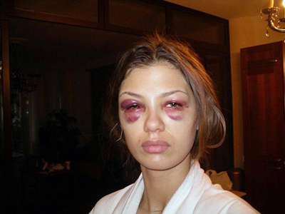 Пластический хирург уверен, что Виктория Боня сделала пластику губ и ее избили