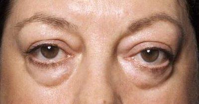 Мешки под глазами: как убрать и причины