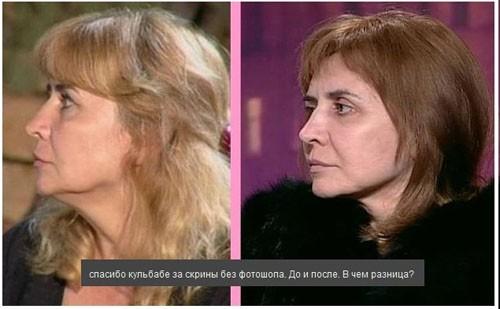 Ирина Агибалова после операции вернулась на проект