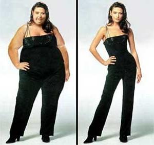 Гастрэктомия — метод борьбы с лишним весом