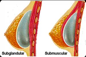 Скандал с грудными имплантантами
