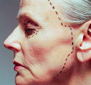 Ритидэктомия — круговая подтяжка кожи лица и шеи