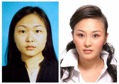 Пластическая хирургия в Китае молодеет с каждым годом