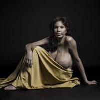 «Новая красота»: жертвы пластической хирургии