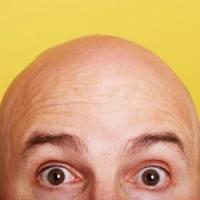С ног — на голову: новые методы трансплантации волос