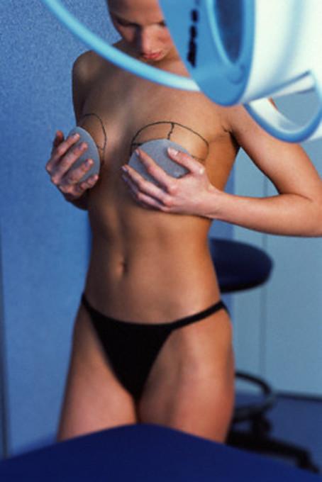 Американская студентка выиграла бесплатную маммопластику.