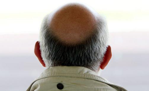 Трансплантация волос приводит к лысине даже звезд