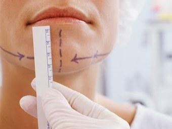 Подбородочные имплантаты приобрели популярность