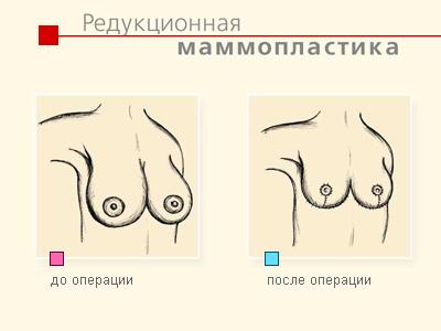 В Великобритании всё чаще делают редукционную маммопластику