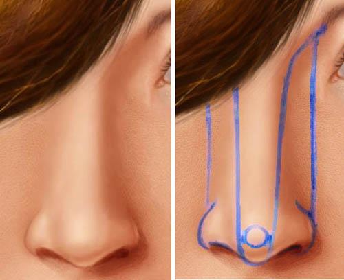 Реконструкция формы и пластика носа