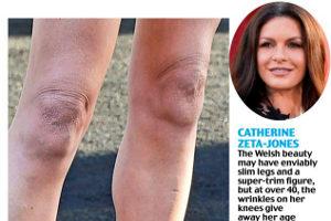 Морщинистые, обвисшие колени – слабое место даже следящих за собой знаменитостей