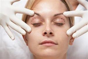 После пластической операции женщинам рекомендован стресс