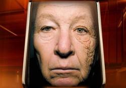 Убедитесь наглядно, как солнце старит Вашу кожу