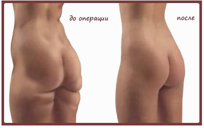 Итог липосакции – деформация тела и лишний вес