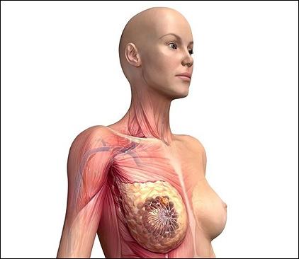 Государственная программа по борьбе с раком груди
