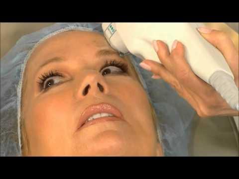 Ultherapy: новый способ победить морщины