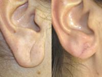 Даже мочки ушей нуждаются в подтяжке