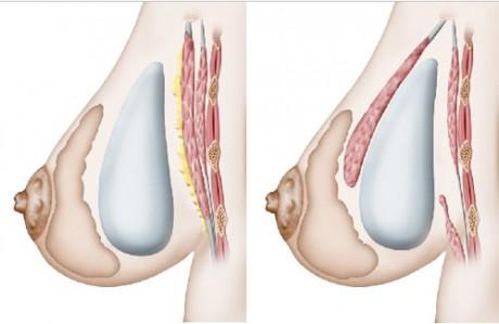 Плюсы и минусы операции по увеличению груди