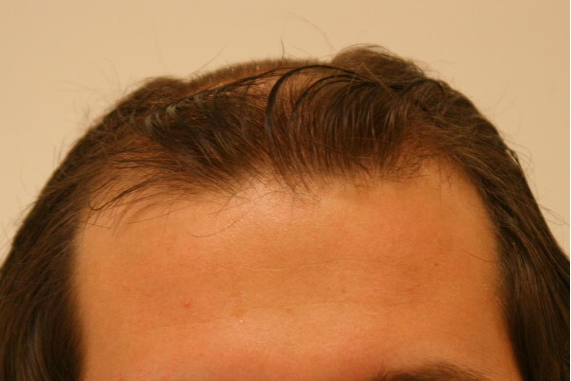 Какие бывают виды операций по пересадке волос