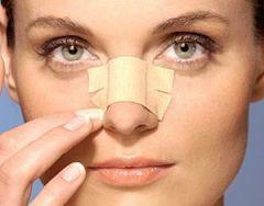 Операция ринопластика: коррекция носа
