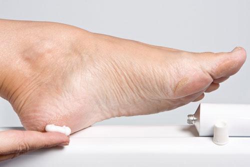 Косметические средства для ног от трещин и натоптышей