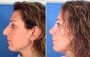 Избавляемся от природных недостатков: пластика носа