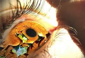 Причины близорукости и дальнозоркости. Как улучшить зрение?