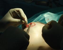 Пластика ареолы и соска сделает грудь обворожительной и сексуальной