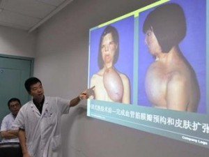 Новое лицо китаянке вырастили на ее груди