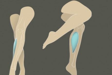 Хирургическая пластика голеней: кто и зачем делает