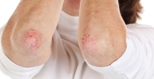 Псориаз — болезнь века