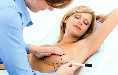 Уменьшение груди: редукционная маммопластика