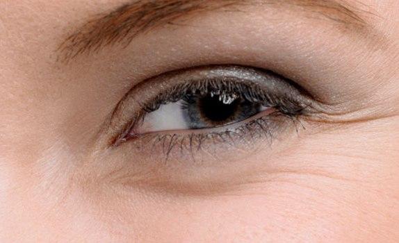 Борьба с морщинами вокруг глаз в домашних условиях