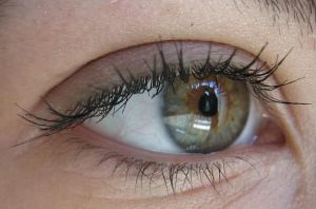 Процедура изменения цвета глаз чуть не лишила зрения пациентку