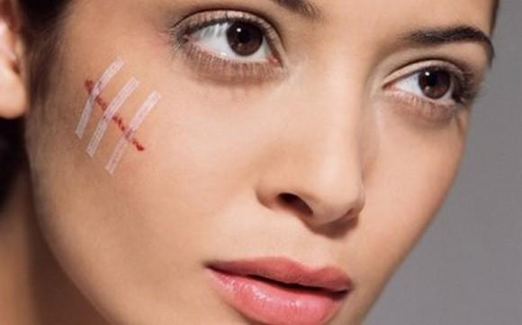 Как избавиться от шрамов и рубцов