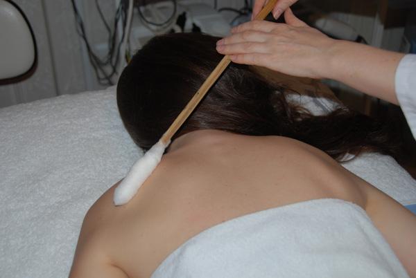 Применение жидкого азота в косметологии