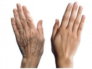 Старение рук: советы косметологов и народные рецепты ухода