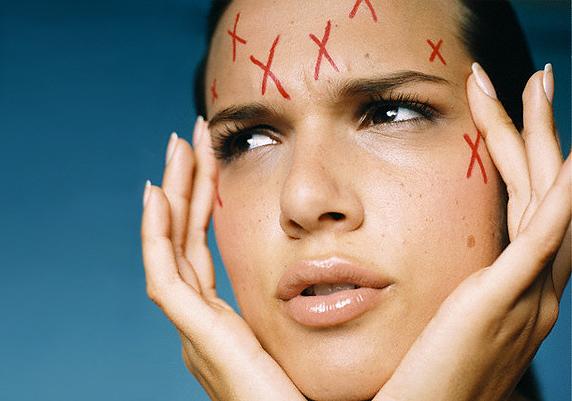 Уход за жирной кожей: что советуют эксперты