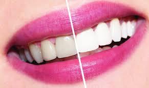 Все безопасные способы восстановления белизны зубов дома