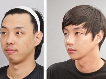 Корея ограничивает рекламу пластической хирургии