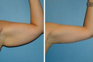 Брахиопластика: риски и гарантии