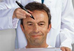 Подтянуть шею и убрать грудь: мужчины полюбили пластические операции