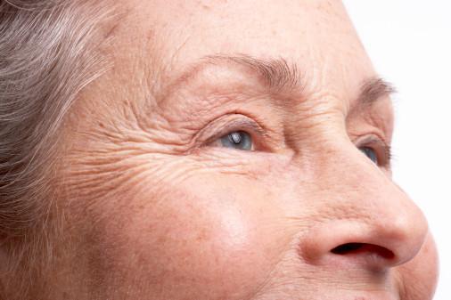 Морщины на лице… Устраняем проблему!