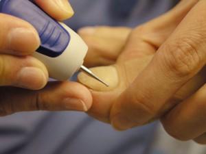 Аппаратный педикюр: 10 интересных фактов