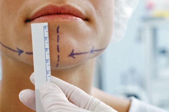 Немного о пластической хирургии: возьмите на заметку