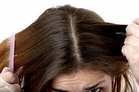 Лечение кожи головы от шелушения