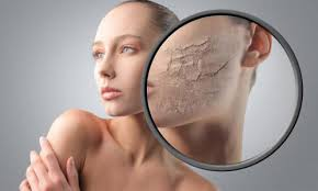 Очищение и уход за сухой кожей лица