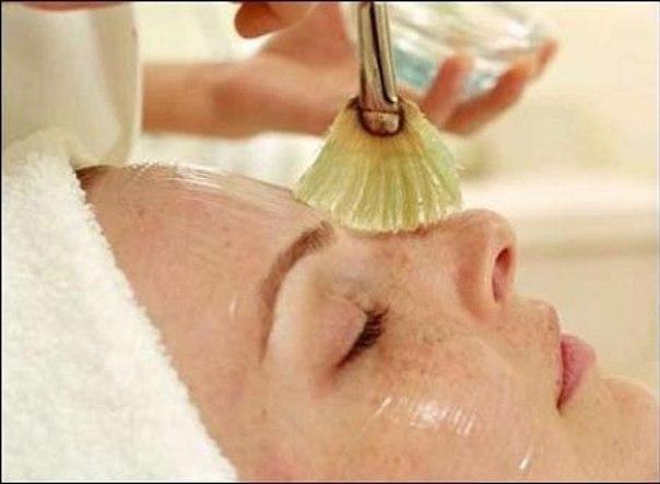 Химический пилинг: безопасное удаление отмершей кожи